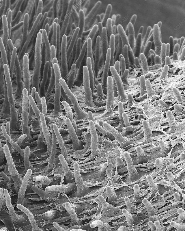 Radish seed root hairs (Raphanus sativus), SEM