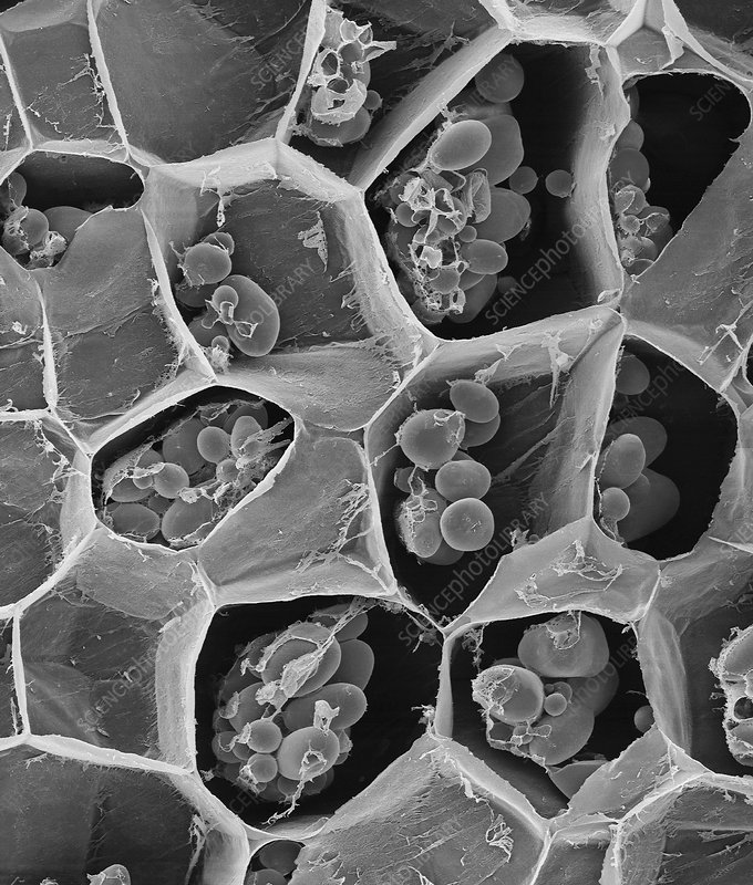 Potato starch grains, SEM