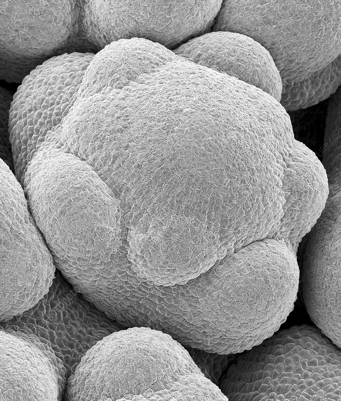 Flower bud in a cauliflower head, SEM