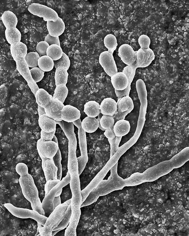 Mould (Cladosporium spp.) hyphae and spores, SEM