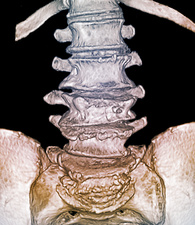 Osteoporotic lumbar spine fracture, 3D CT scan