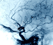 Cerebral aneurysm treatment, angiogram