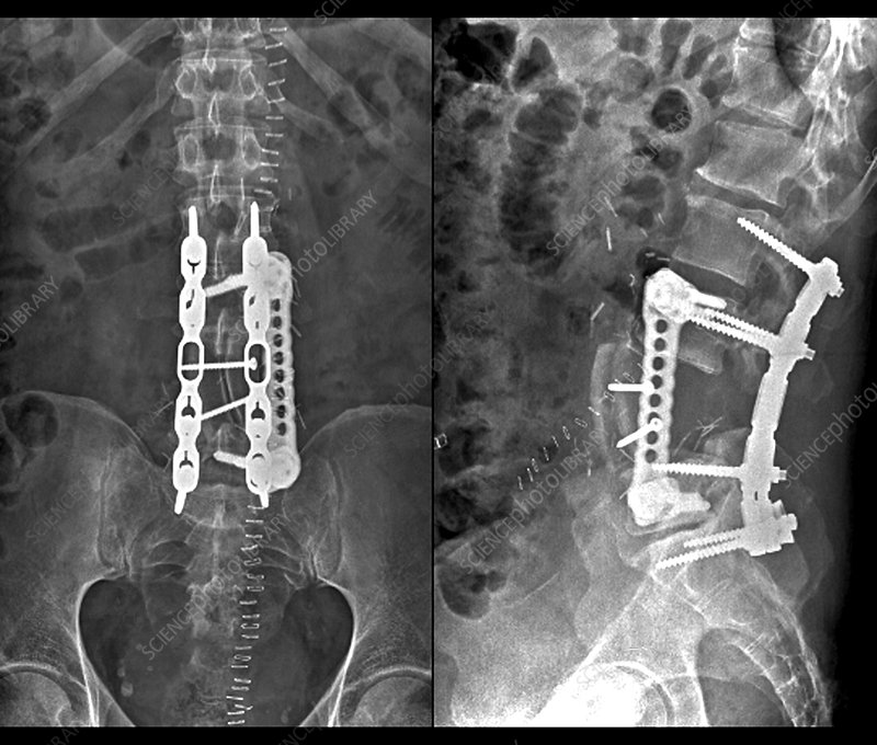 Implants following spinal surgery, X-rays