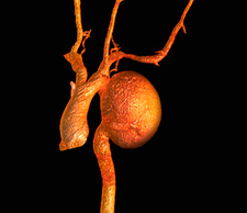Aortic aneurysm, 3D CT scan