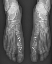 Bunion surgery, feet X-ray