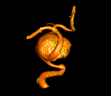 Cerebral aneurysm, 3D CT scan