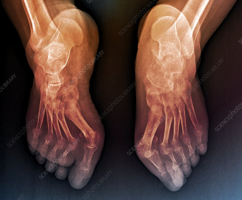 Rheumatoid arthritis of the feet, X-ray