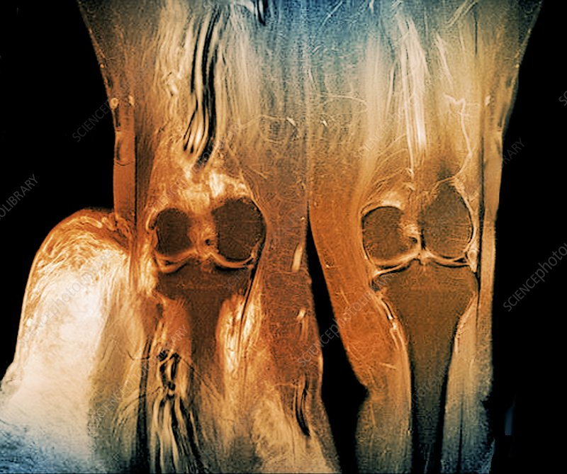 Elephantiasis of the legs, MRI scan