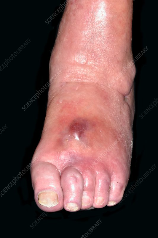 Cellulitis in rheumatoid disease