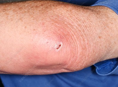 Infected olecranon bursitis