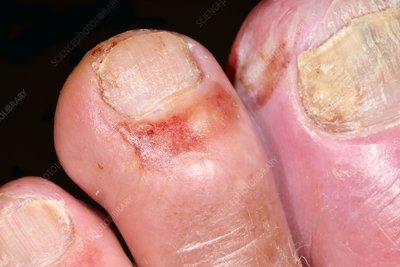 Infected toes in type 1 diabetes