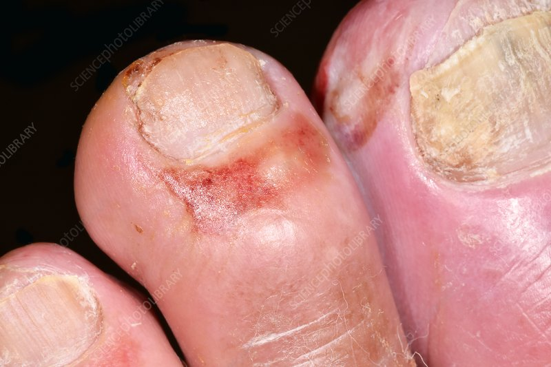 Infected Toes In Type 1 Diabetes Stock Image C037 0841 Science Photo Library