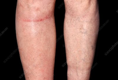 Lymphoedema of the right leg