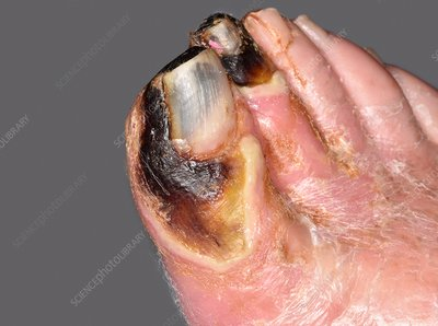 Gangrenous toes caused by diabetes