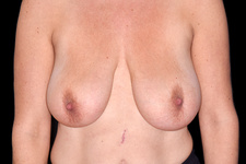 Large breasts causing neck pain