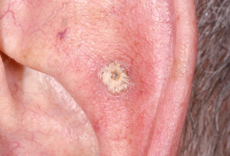 Bowenoid keratosis