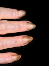 Fingernails in pachyonychia congenita