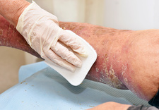 Debridement of skin lesions