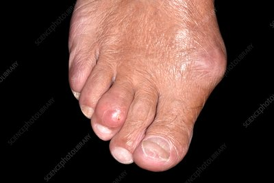 Bunion and gout