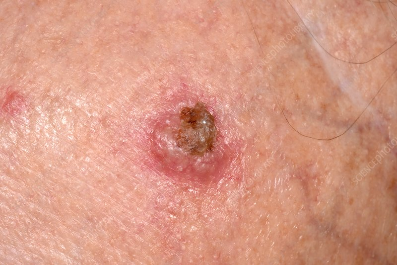 Squamous cell carcinoma skin cancer - Stock Image - C037/0915 - Science  Photo Library