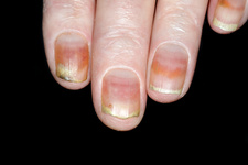 Dystrophic fingernails due to chemotherapy