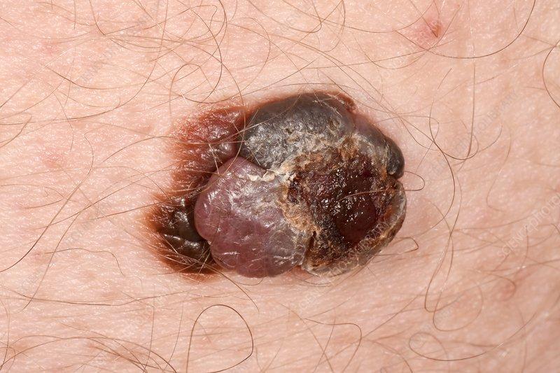 Malignant melanoma skin cancer - Stock Image - C037/0929