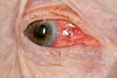 Acute glaucoma in a blind eye