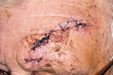 Sutured head wound from a fall