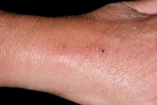 Inflammation at intravenous cannula site