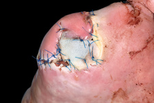 Toe amputation with infection