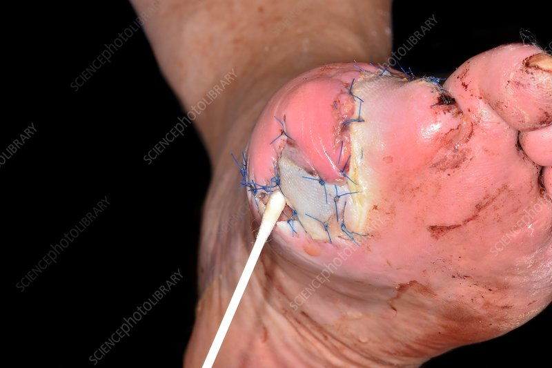 Swabbing toe amputation site for bacteria