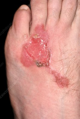 Burns to foot after one week