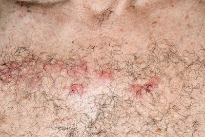 Shingles lesions across the chest midline