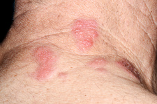 Shingles lesions across the neck