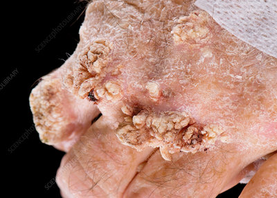 Proliferative squamous lesions