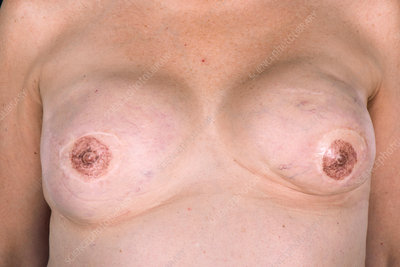 Breast reconstruction after cancer
