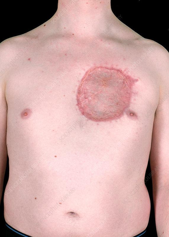 Dermatofibrosarcoma surgery scar