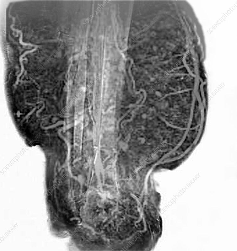 Elephantiasis of the legs, MRA scan