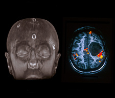 Brain lesion, MRI scans