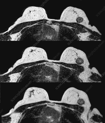 Breast tumour, axial MRI scans