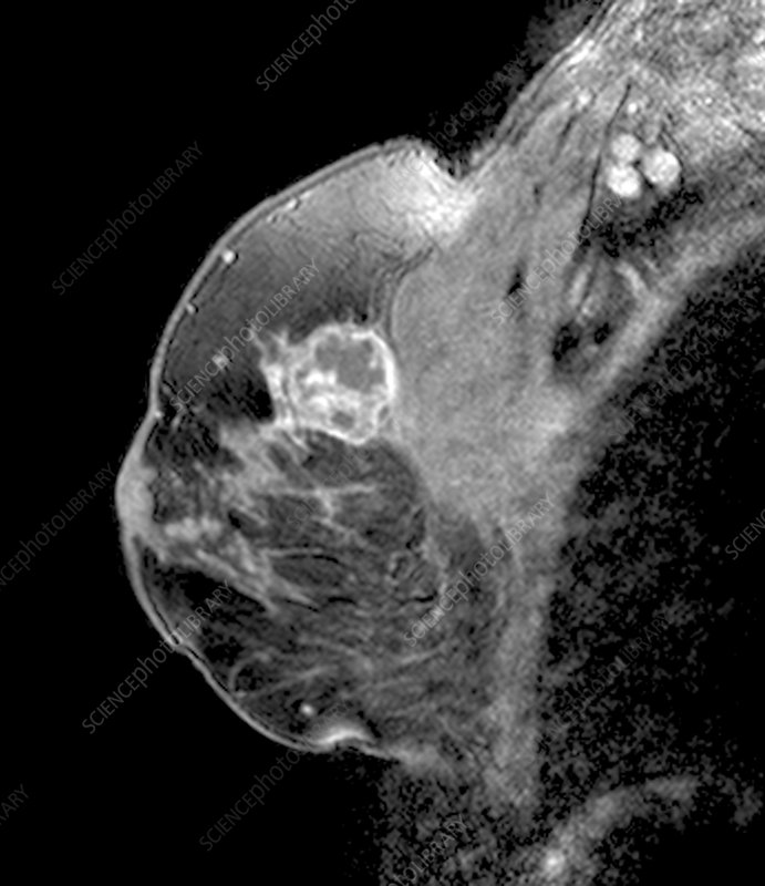 Breast tumour, sagittal MRI scan