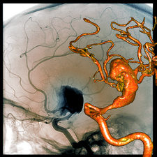 Cerebral aneurysm, 2D and 3D angiograms