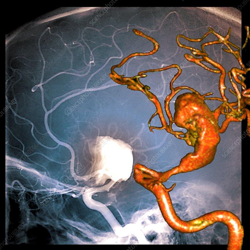 Cerebral aneurysm, 2D and 3D angiograms