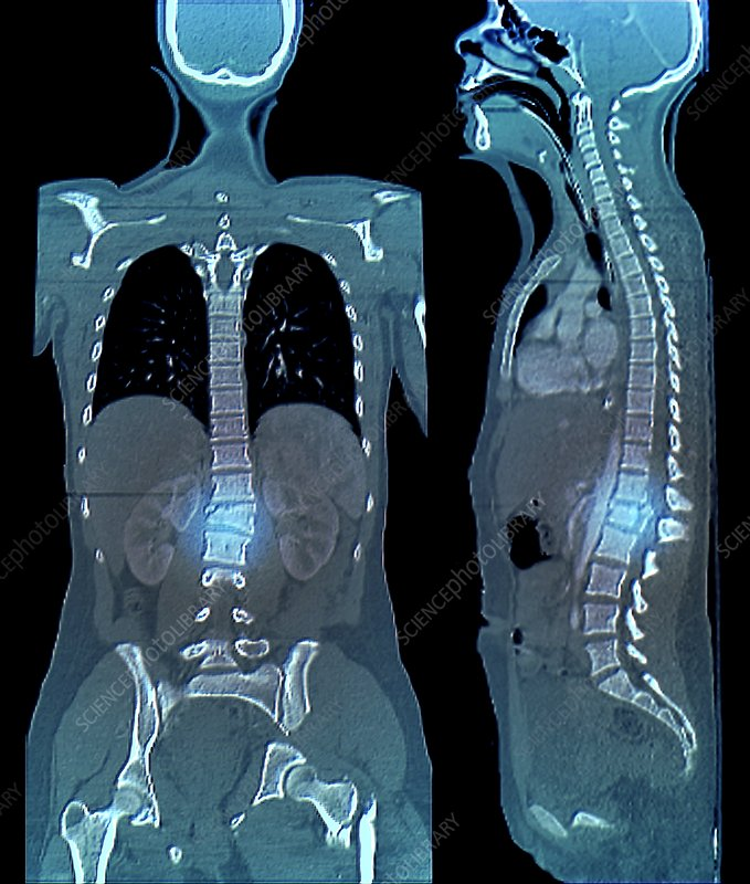 Spinal and pelvic fractures, CT scans