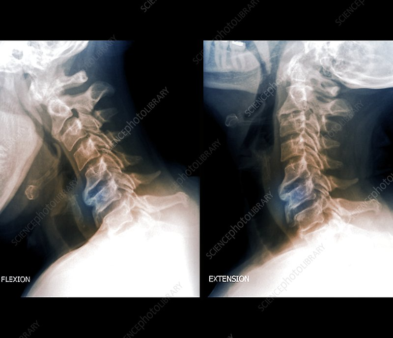 Osteoarthritis of the cervical spine, X-rays