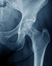 Secondary bone cancer in the hip, X-ray