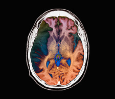 Stroke, MRI brain scan