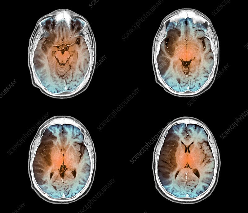 Stroke, MRI brain scans