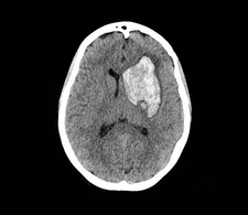 Intracerebral haemorrhage, CT brain scan