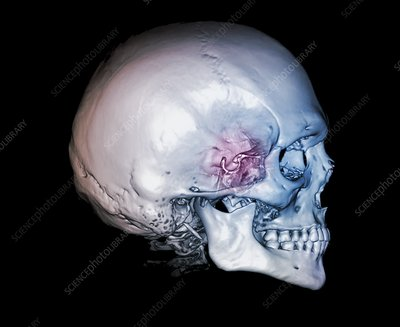 Human skull and site of pituitary gland, 3D CT scan